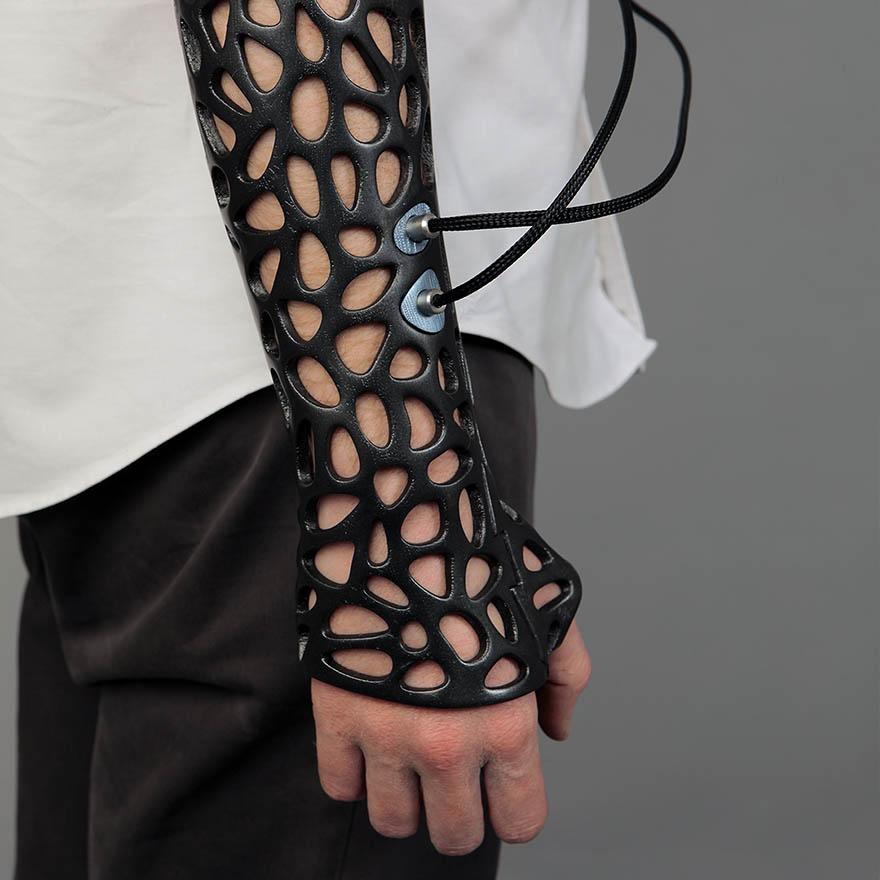 osteoid-3d-printed-cast-deniz-karasahian-3
