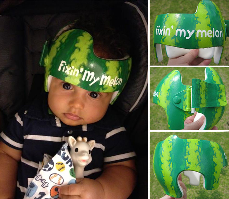 Artist transforms babies head shaping helmets into for Baby cranial helmet decoration