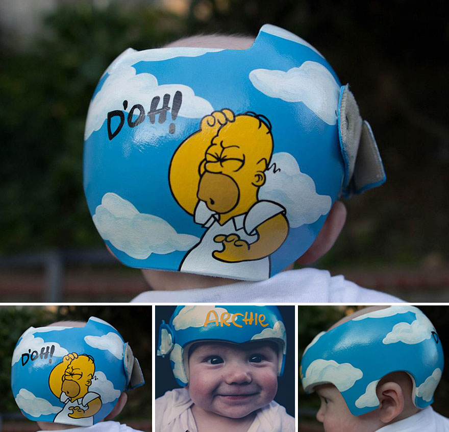 Helmets For Babies With Down Syndrome