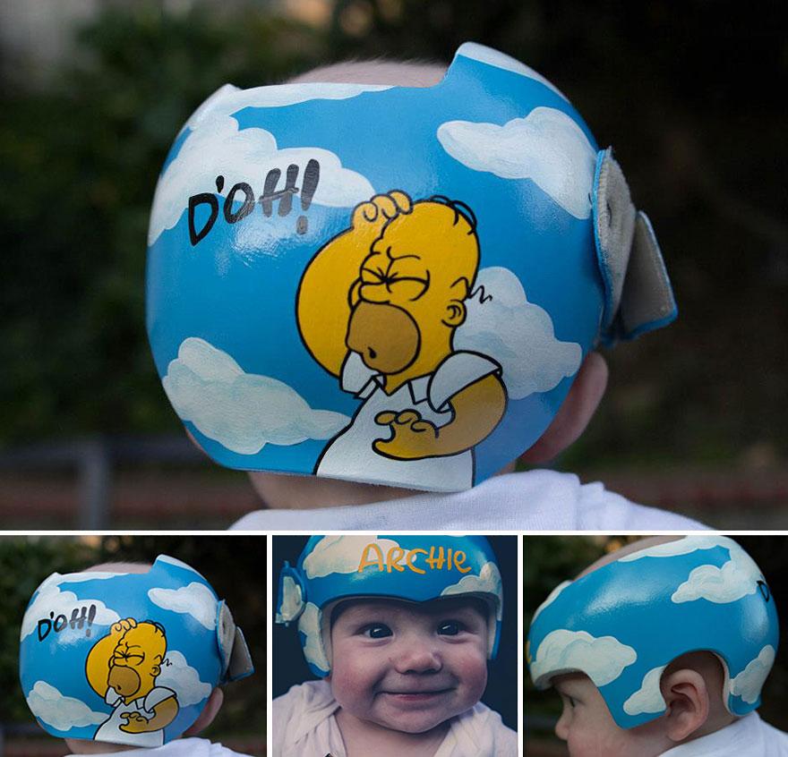 Artist Transforms Babies Head Shaping Helmets Into