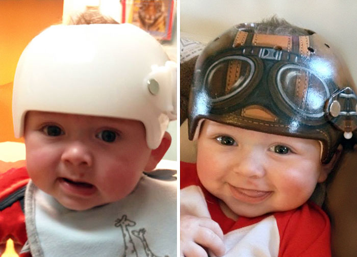 Artist Transforms Babies' Head-Shaping Helmets Into Beautiful Art