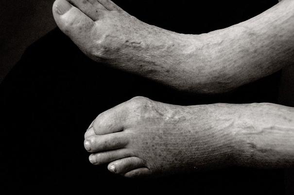 aged-human-body-100-years-old-centenarians-anastasia-pottinger-9
