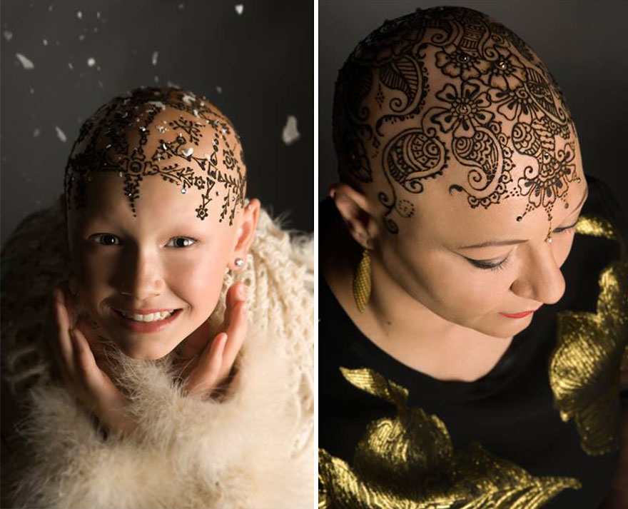 Mehndi For Hair Growth In : Elegant henna tattoo crowns help cancer patients cope with