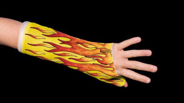 Flaming Arm Cast