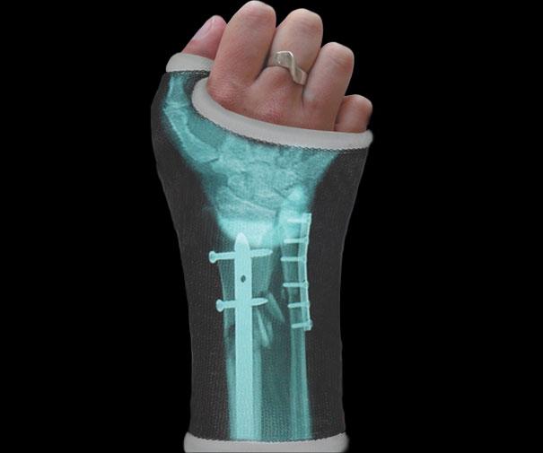 X-ray Cast