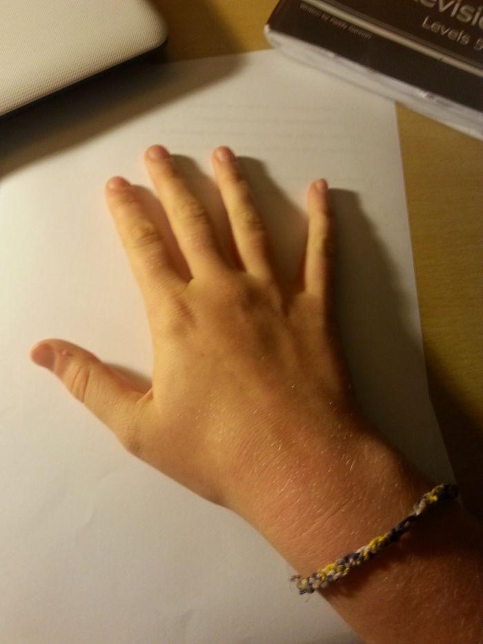 My Hand :)