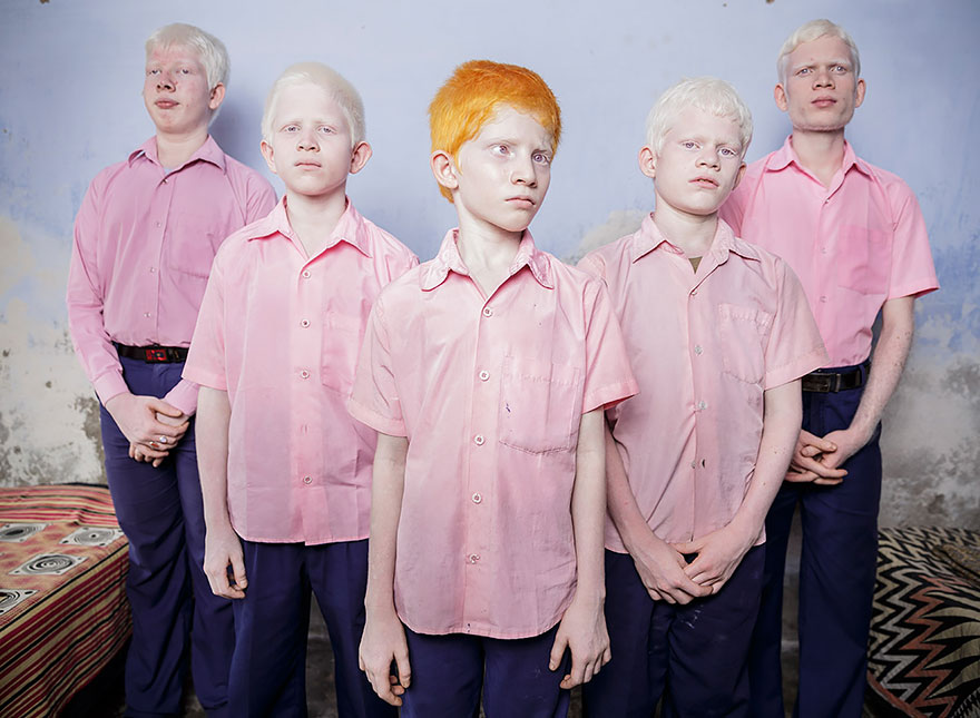 Blind Albino Students Stand In A Dorm At The Vivekananda Mission School In India