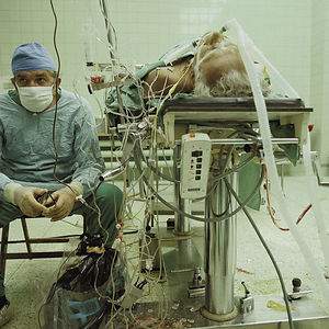 Heart Surgeon After 23-Hour-Long (Successful) Heart Transplant. His Assistant Is Sleeping