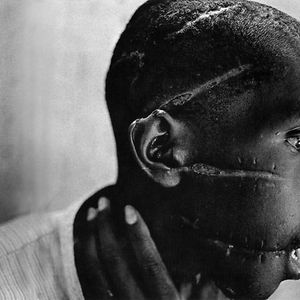 Rwandan Boy Left Scarred After Being Liberated From A Death Camp