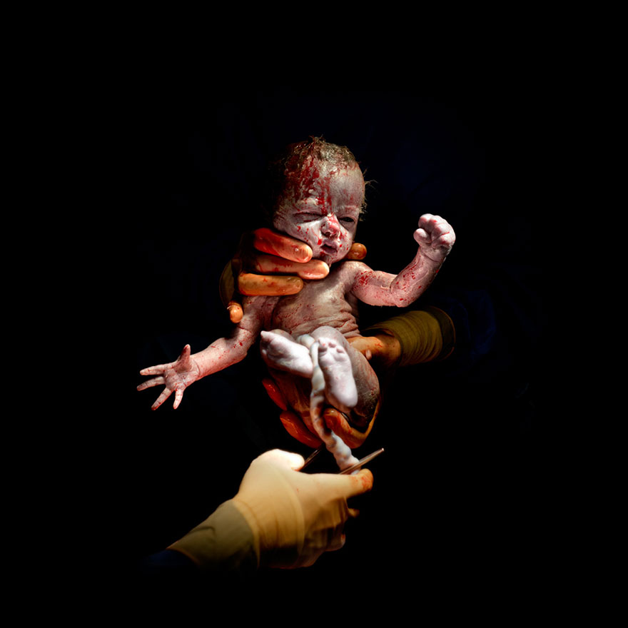 newborn-infant-photos-c-section-cesar-christian-berthelot-7