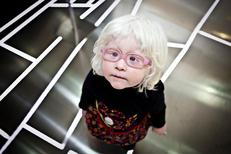 A Girl With Albinism, Valencia, Spain