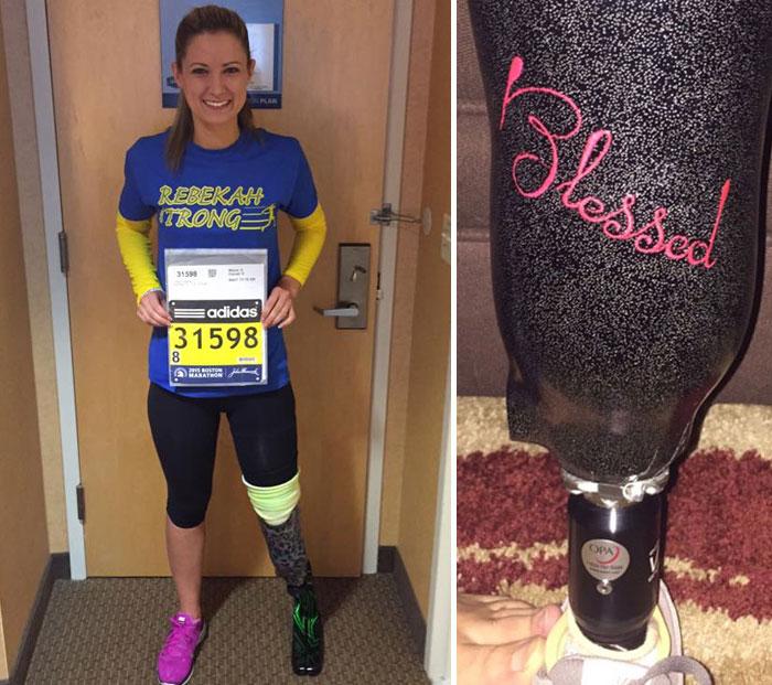 Boston Bombing Survivor Will Run In Marathon Again With Her New Prosthetic Leg
