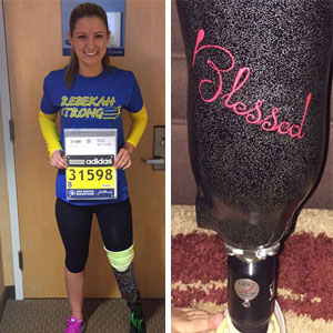 Boston Bombing Survivor Will Run In Marathon Again With Her New Prosthetic Leg