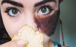 People Told Her To Remove Her Birthmark, But She Chose To Embrace It Instead