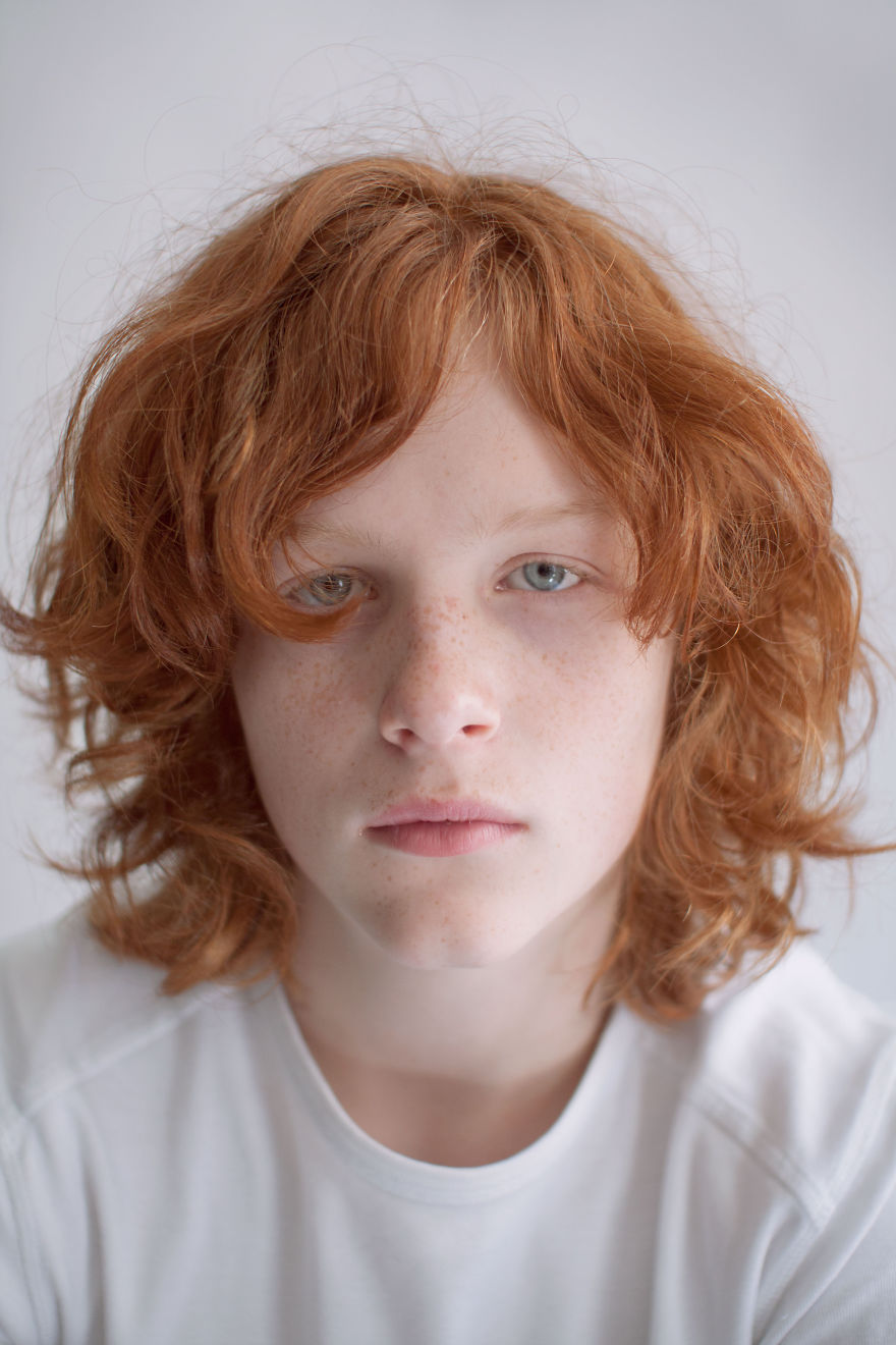 a personal narrative of being stereotyped and bullied due to having natural red hair Red hot ears is usually considered harmless, however, if red and hot ears are associated with pain, skin problems and other changes, it should be properly evaluated know what can cause ears to become red and hot and hot to manage them.