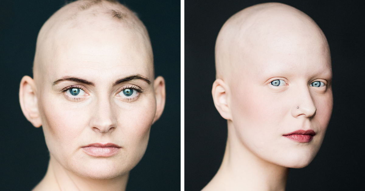 Baldvin: I Photograph Women With Alopecia To Break Gender Stereotypes