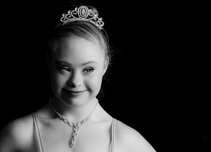 A Teen With Down Syndrome Just Landed A Modelling Contract