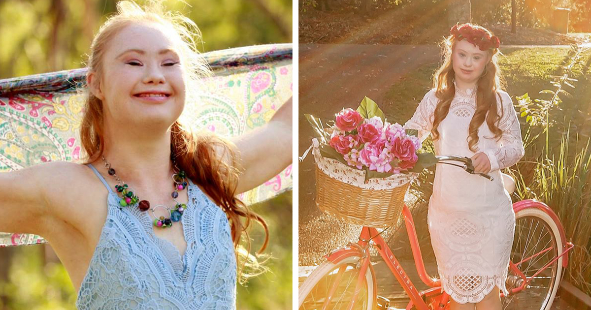 A Teen With Down Syndrome Just Landed A Modelling Contract | Bored Panda
