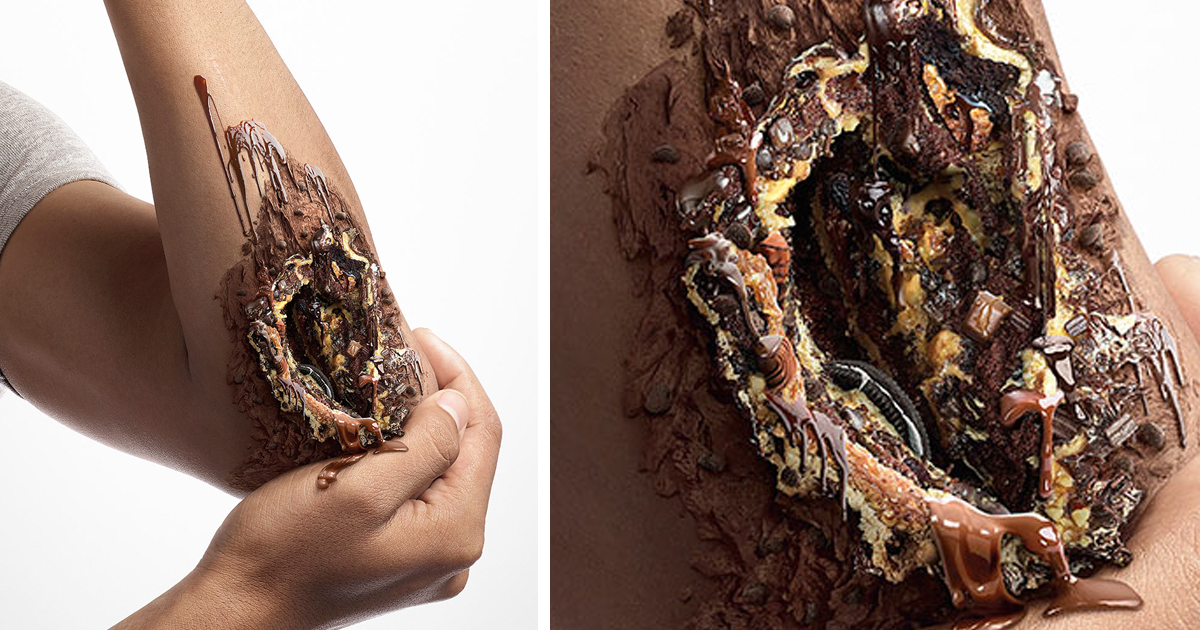 Shocking Pics Show The Dangerous Side Of Sugar