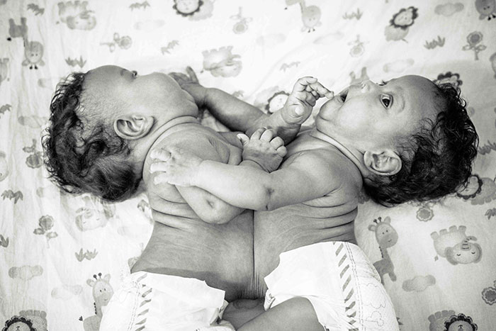 These 2-Months-Old Conjoined Twins Share One Liver And I Had The Honor To Photograph Them
