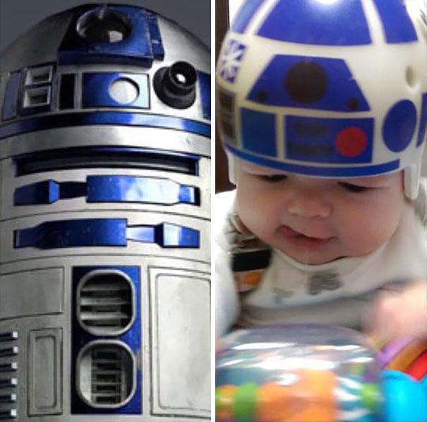 craniosynostosis-helmet-star-wars-kid-1