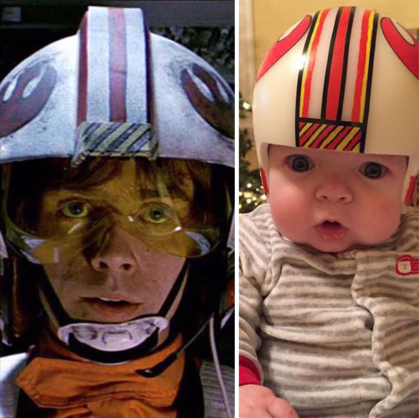 craniosynostosis-helmet-star-wars-kid-2