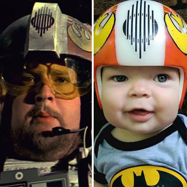 craniosynostosis-helmet-star-wars-kid-4