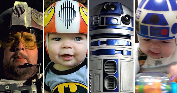 Dad Turns Son's Head-Shaping Helmets Into Star Wars Art To Wear After Surgery