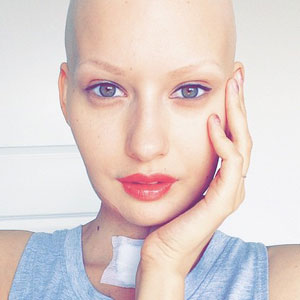 Doctors Told Model To Abort Her Child After She Lost 95% Of Her Jaw To Cancer. This Is What She Did