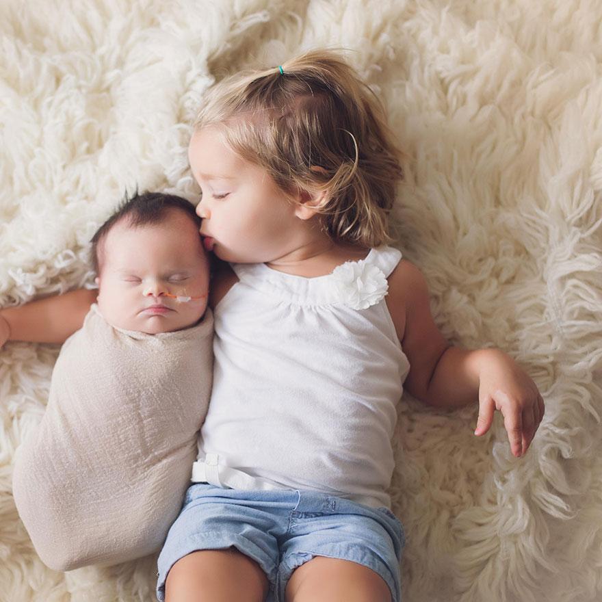 baby-terminal-brain-tumor-cancer-down-syndrome-family-photos-abigail-jones-10