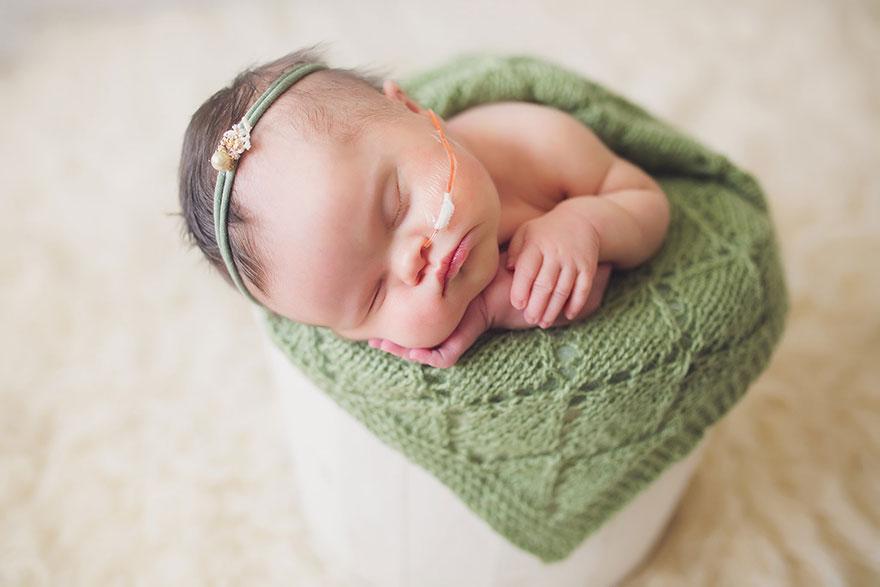 baby-terminal-brain-tumor-cancer-down-syndrome-family-photos-abigail-jones-15
