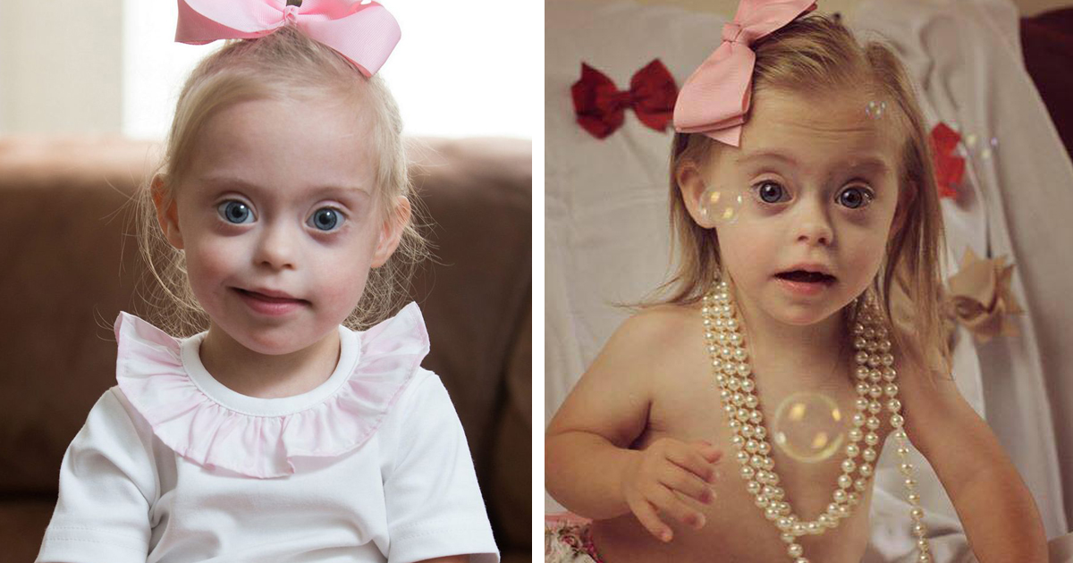 Topless down syndrome girls above