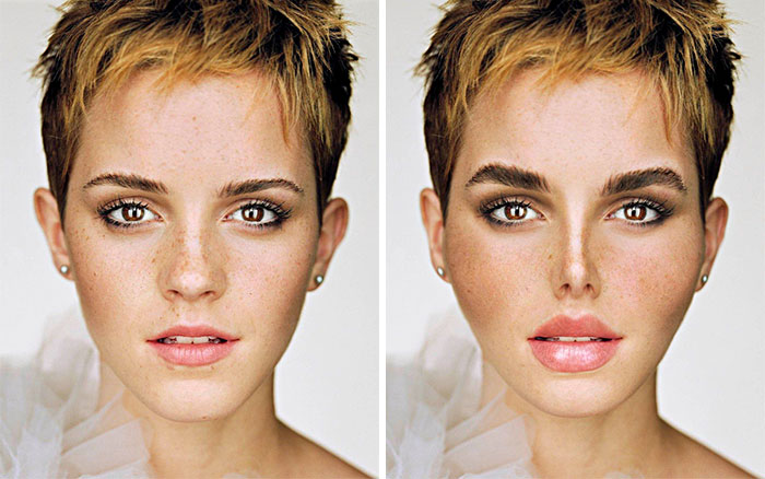 What If These Celebrities Became Obsessed With Fake Beauty And Stereotypical Plastic Surgeries ?