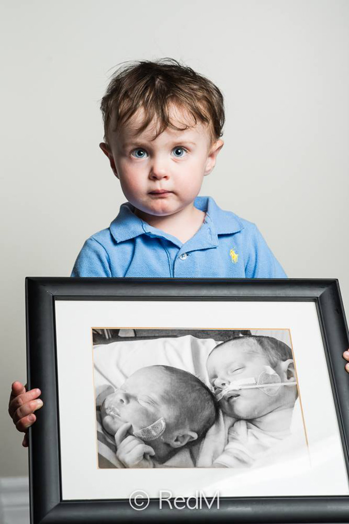 premature-baby-portraits-les-premas-red-methot-17