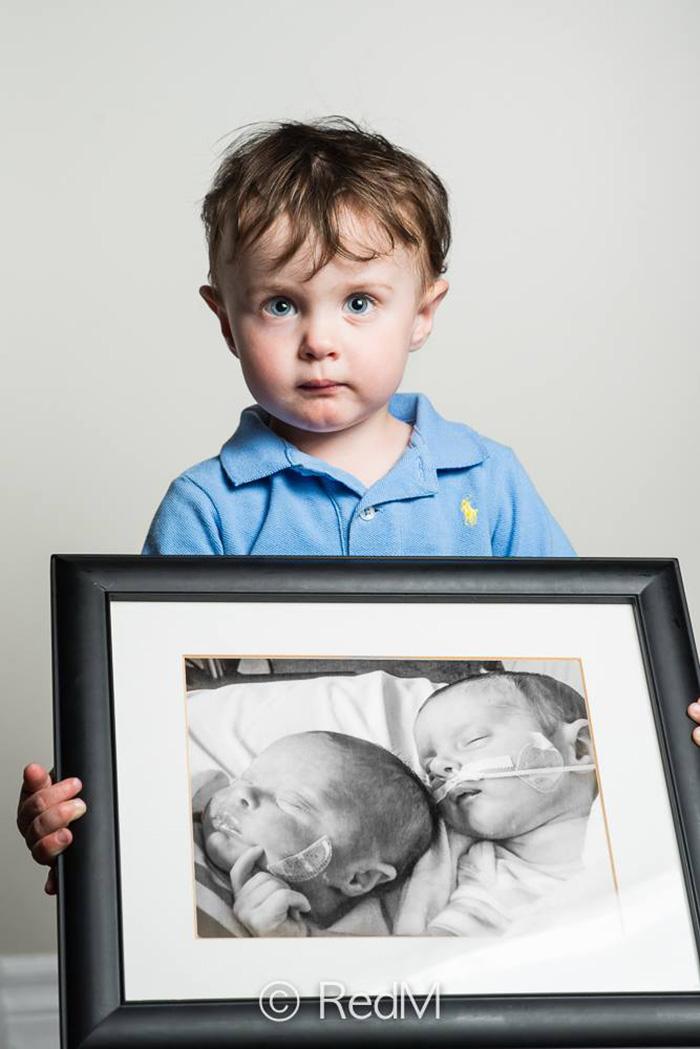 premature-baby-portraits-les-premas-red-methot-17