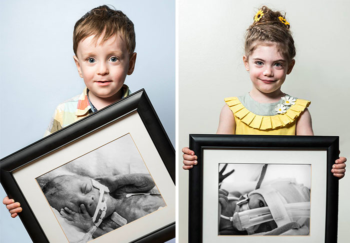 Powerful Before-And-After Portraits Of Premature Babies