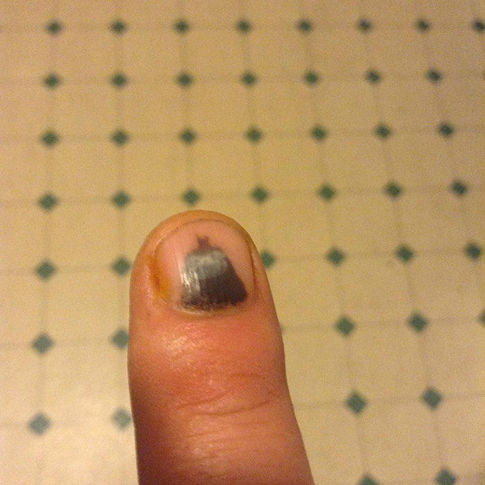 My Smashed Finger Looks Like Batman And A Little Like A Sloth