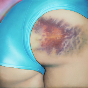 The Beauty Of Bruises: I Captured These Mini-Galaxies On The Butts Of Roller-Derby Girls