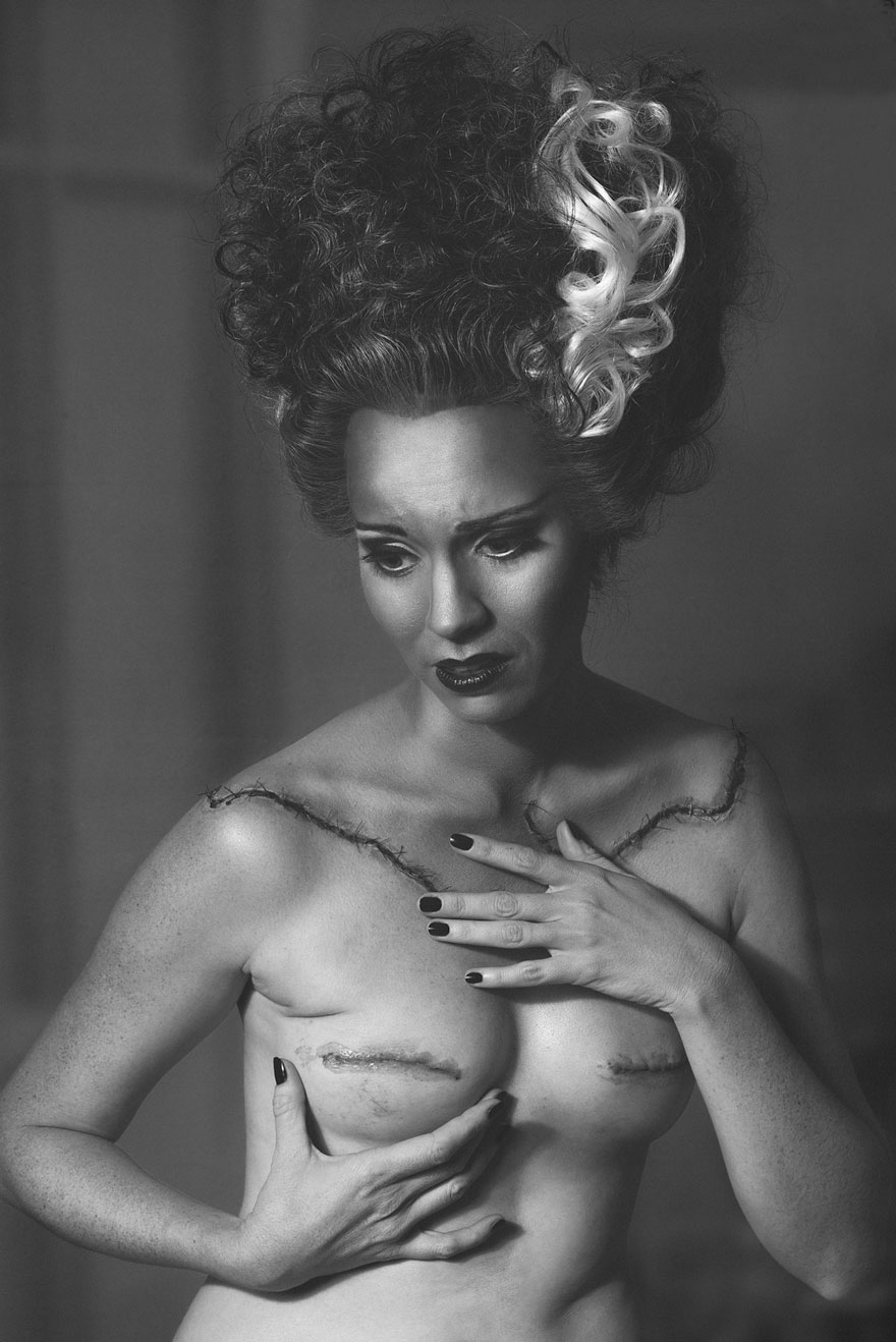 cancer-mastectomy-photos-my-breast-choice-aniela-mcguinness-3