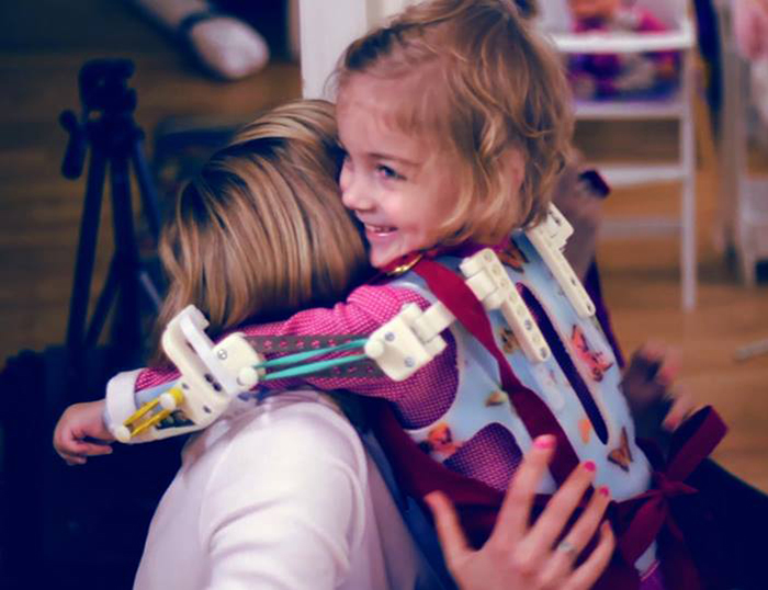 Magic Arms: 3D-Printed Device Helps People With Rare Conditions Move Their Arms