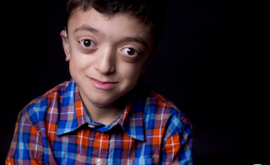 I Photograph Children With Rare Diseases To Encourage People To Look Beyond Their Condition