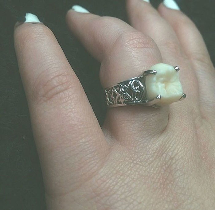 wisdom-tooth-engagement-ring-carlee-leifkes-lucas-unger-24