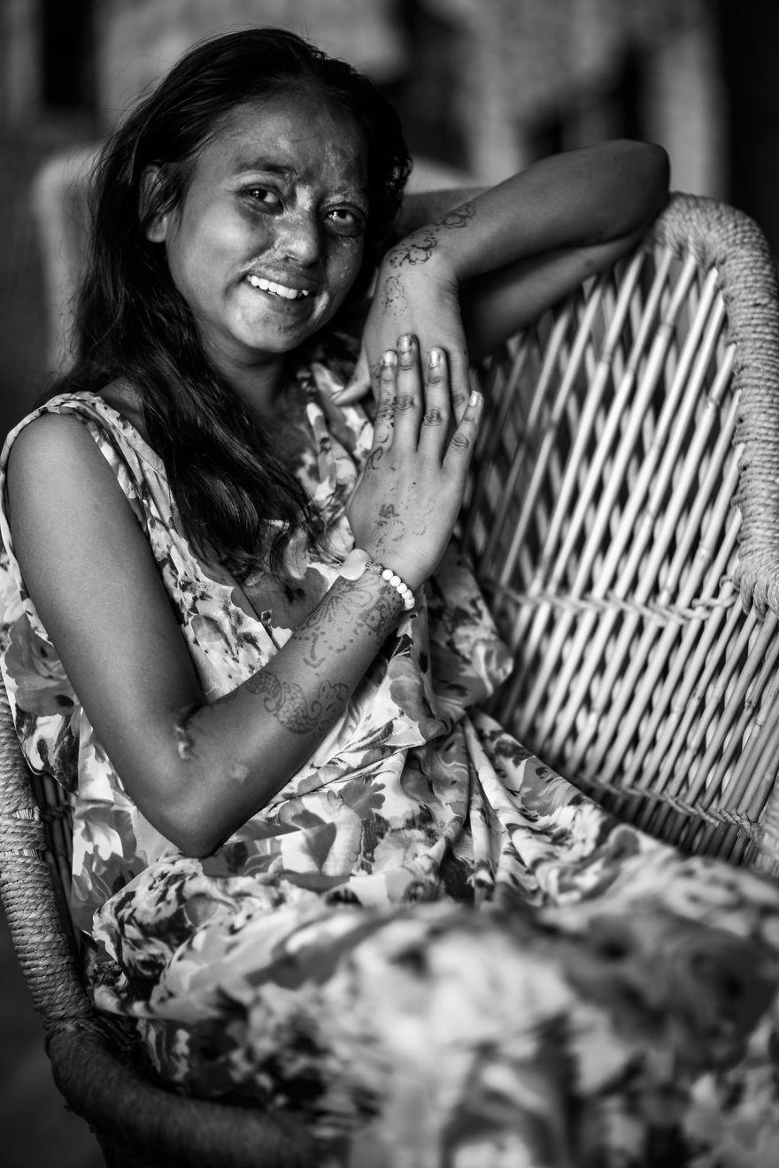 I Took Portraits Of Acid Attacks Survivors In India