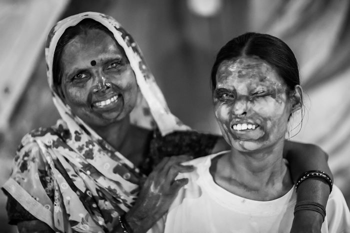 I Took Portraits Of Acid Attacks Survivors In India