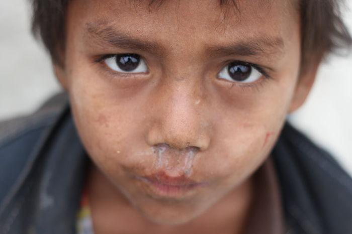 Street Children In Bangladesh