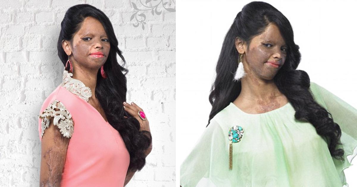 acid attack survivor becomes face of fashion brand in