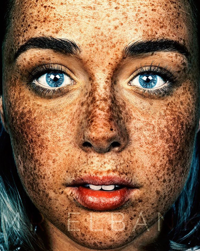 Unique Beauty Of Freckled People Documented By Brock Elbank