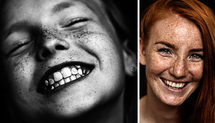 We Are Freckled: Swedish Photographer Captured 100+ Beautifully Freckled People
