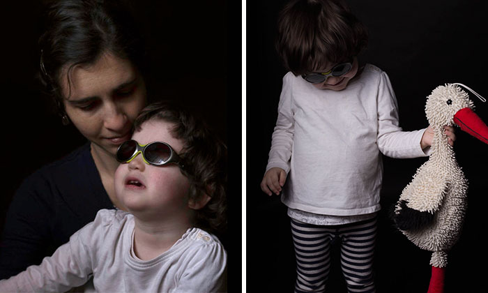 This Little Girl Has A Disease So Rare She Is The Only One To Be Diagnosed With It