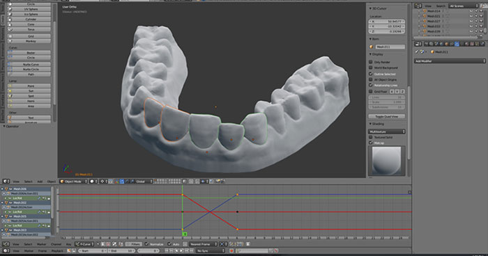3d-printed-braces-amos-dudley-11